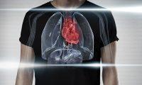 Dấu hiệu tràn dịch màng ngoài tim