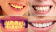 Đánh bay những vết ố vàng trên răng nhờ 1 củ nghệ